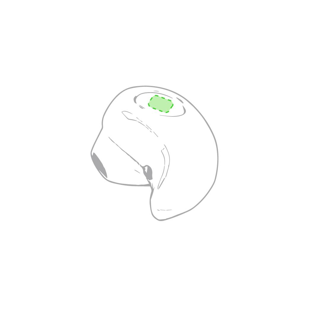 Parte esférica del auricular 1